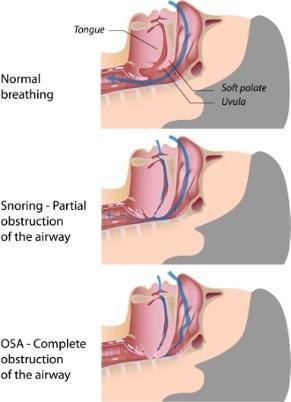 OSA_Diagram330.jpg