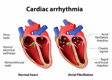 atrial fibrillation can be caused by untreated osa