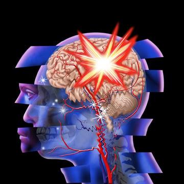 traumatic brain injury can lead to sleep disorders