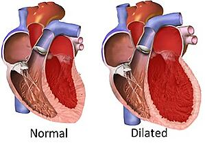 cardiomyopathy happens when the heart enlarges due to stress