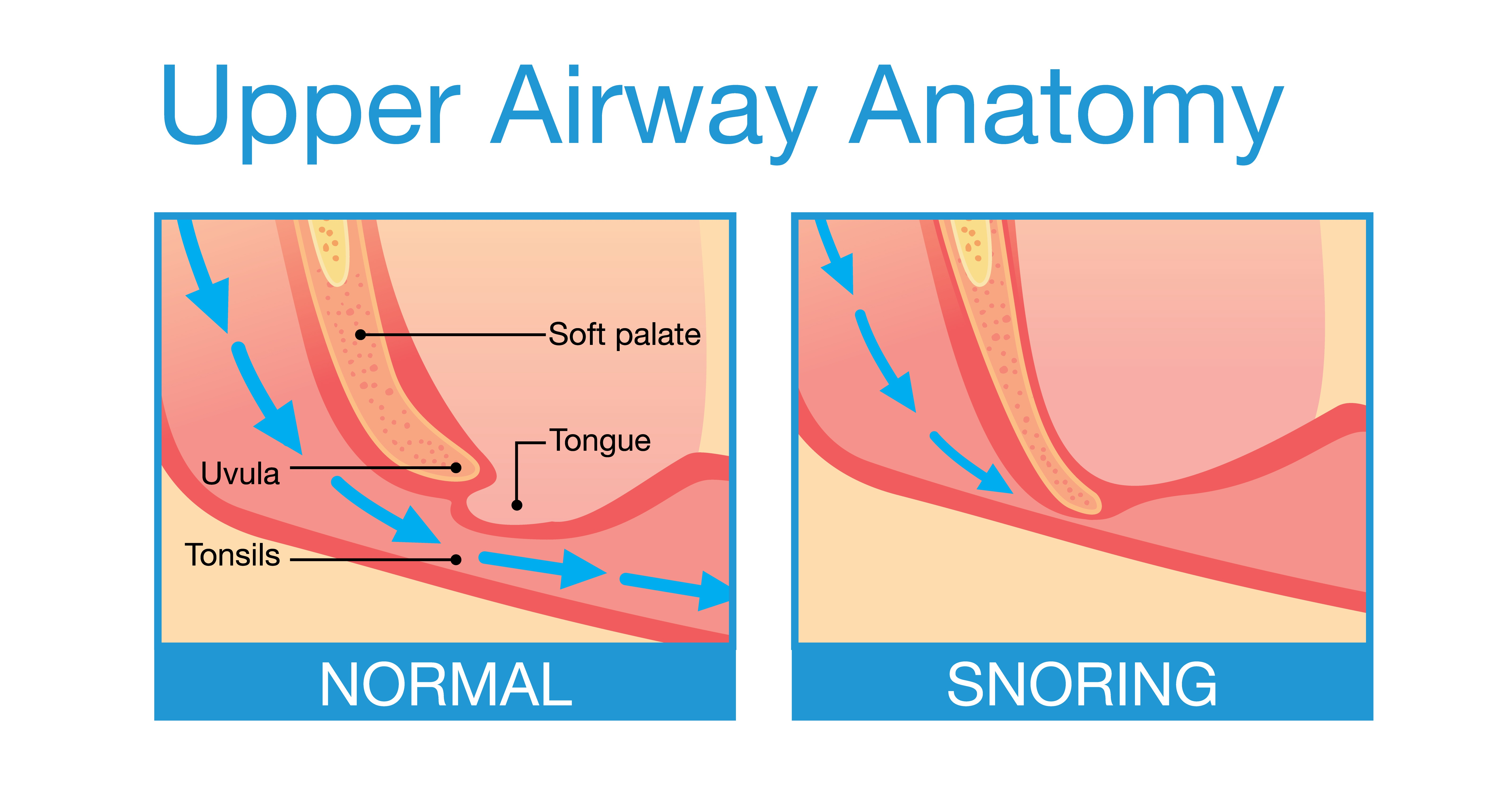 Snoring occurs when tissues in the upper airway vibrate with the airflow caused by breathing