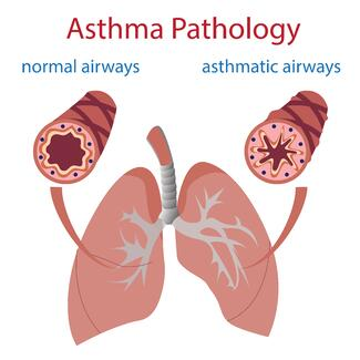 asthma_pathology