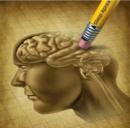 sleep apnea and brain damage