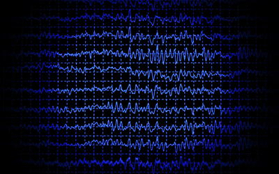 what is a sleep study eeg
