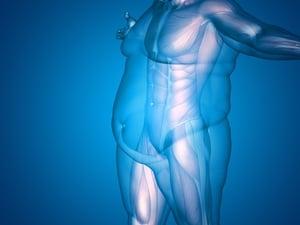 obesity_blue-1.jpg