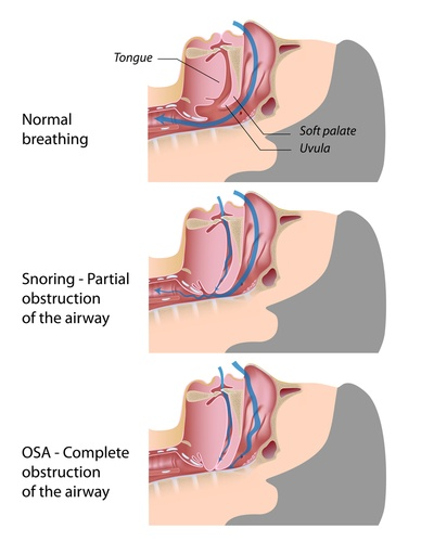 sdb_from_normal_breathing_to_snoring_to_apnea.jpg