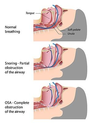 sdb_from_normal_breathing_to_snoring_to_apnea