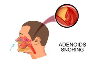 adenoid_snoring_diagram.jpg