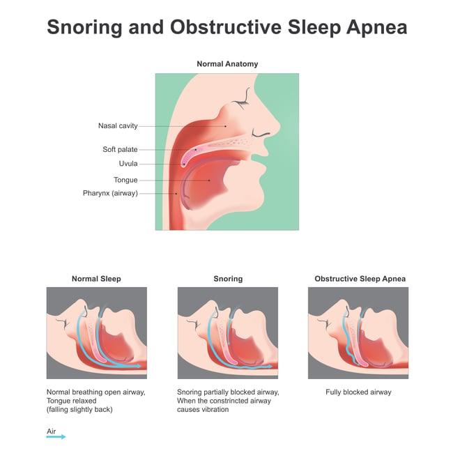 snoring_and_osa_diagram.jpg