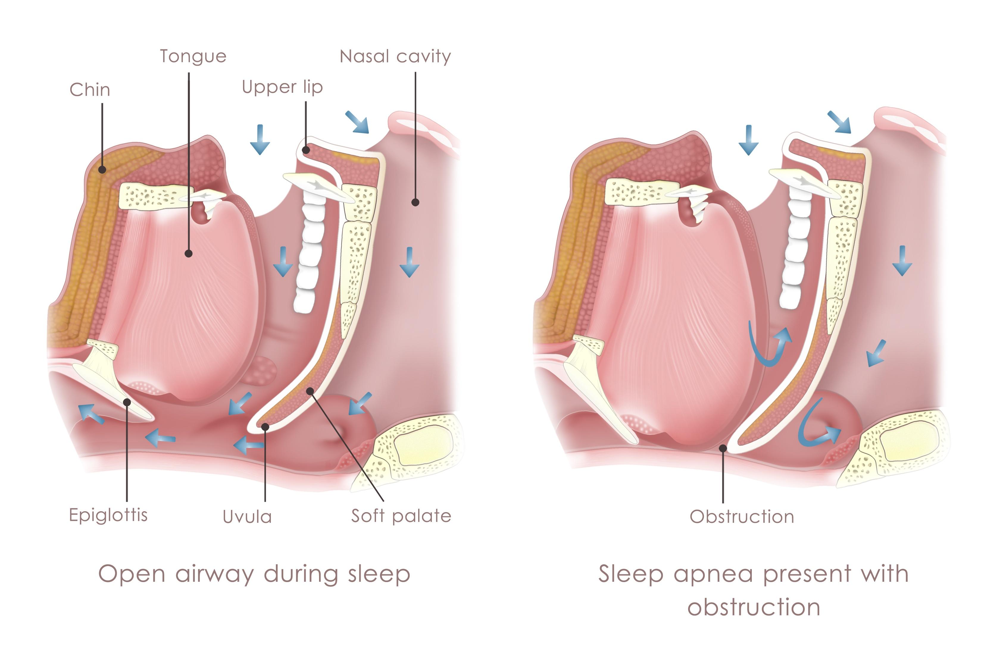 3-types-of-sleep-apnea