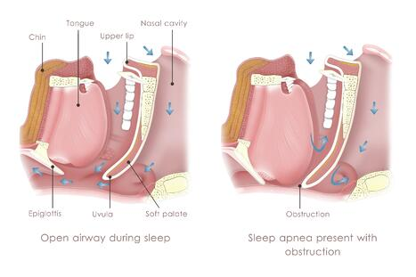 3-types-of-sleep-apnea