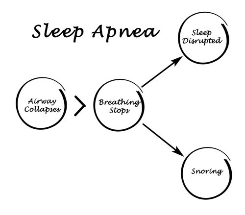 sleep apnea and cancer  one more reason to treat your snoring